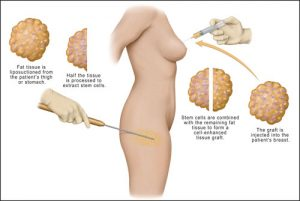 stem-cell-breast-augmentation