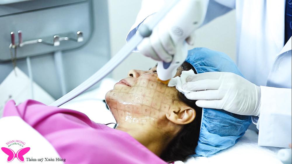 Trẻ hóa da với công nghệ Thermage