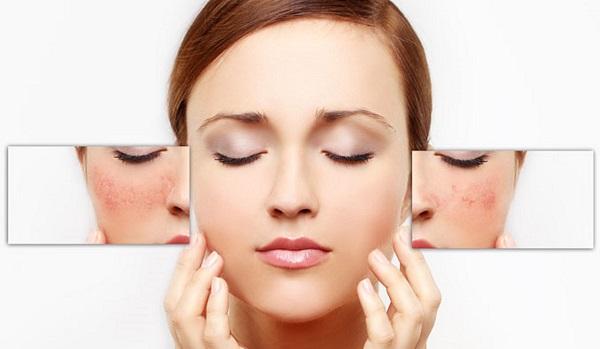 Trẻ hóa da bằng mặt nạ tinh trùng