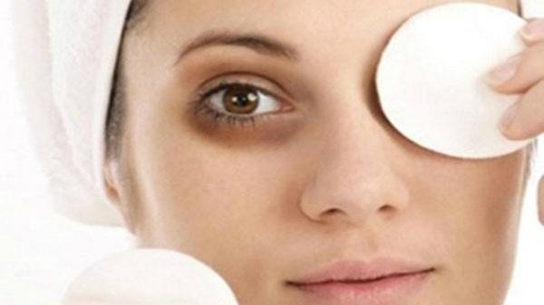 Những cách trị quầng thâm mắt từ nguyên liệu thiên nhiên