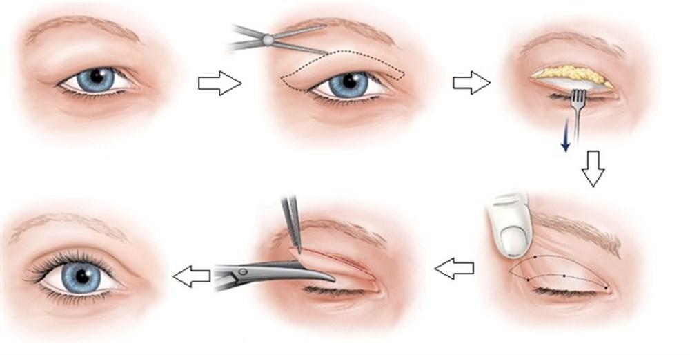 Tạo hình mi mắt có chuyển mỡ