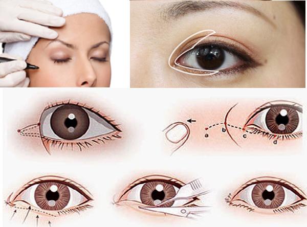 Mở rộng góc mắt trong và ngoài pháp giúp đôi mắt to tròn tự nhiên