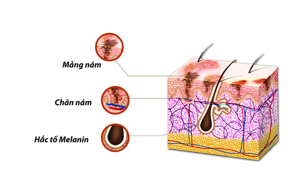 Nguyên nhân gây nám da mặt