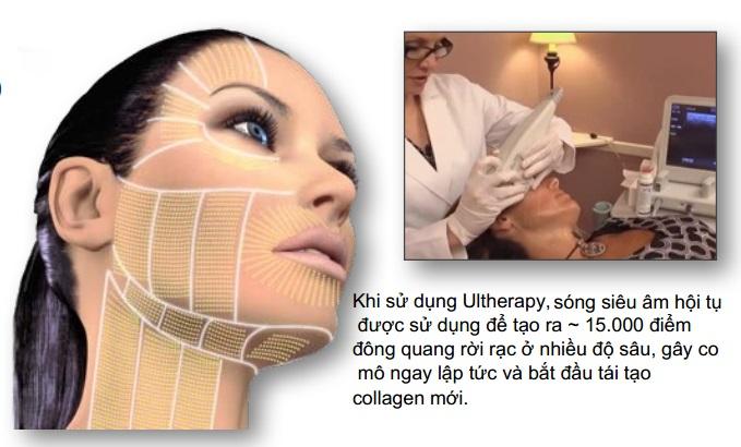 Công nghệ trẻ hóa da Ultherapy