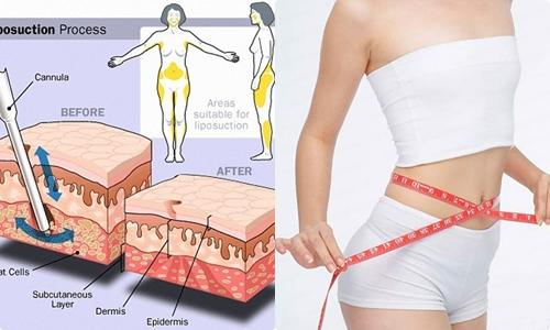 Cách giảm béo bụng nhanh nhất
