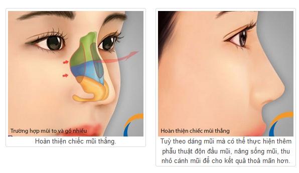 Phẫu thuật mũi gồ