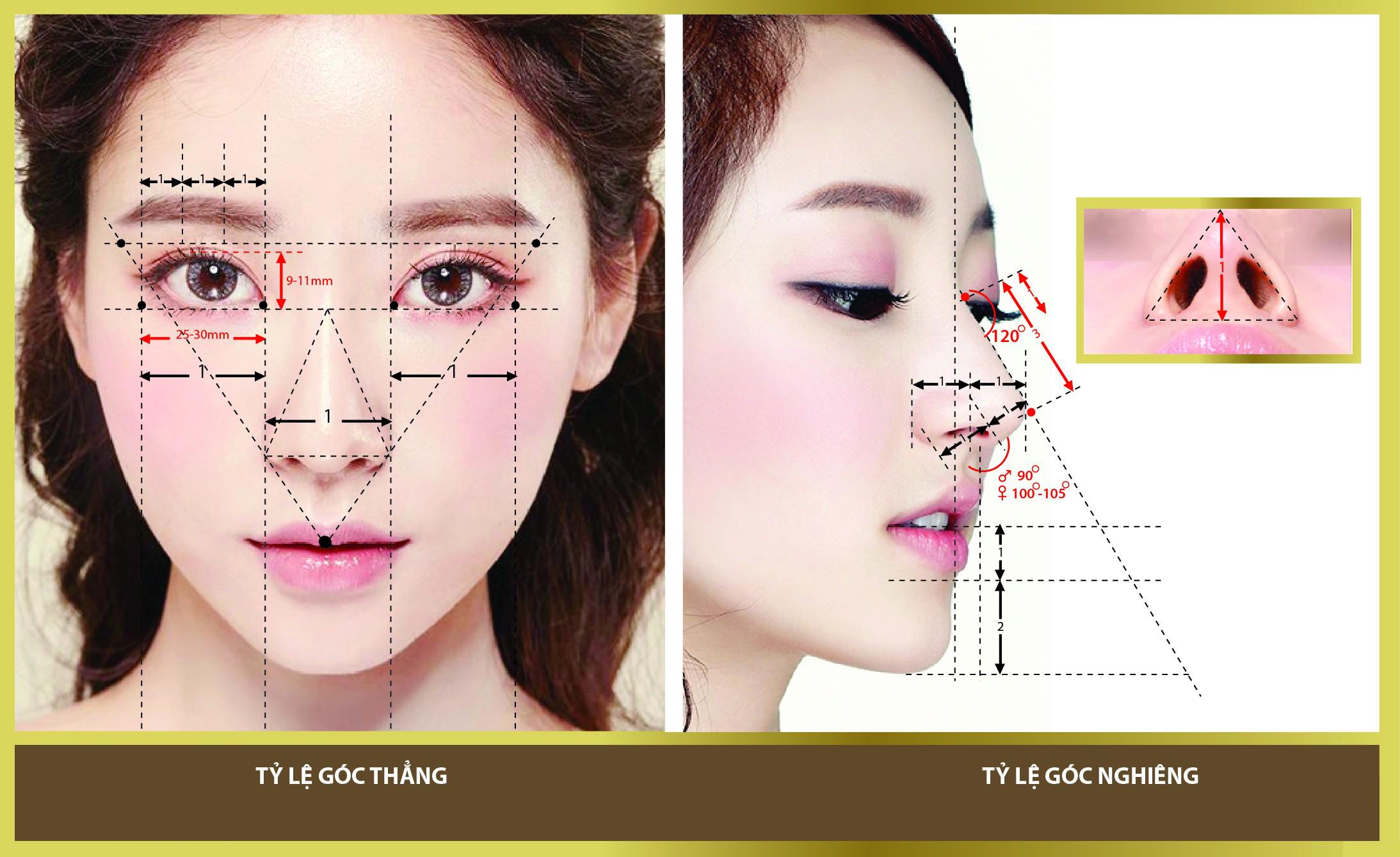 Nâng mũi cấu trúc 4D