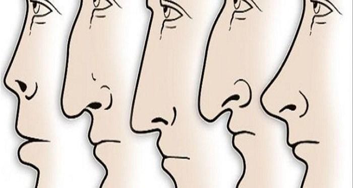 Sửa mũi cấu trúc