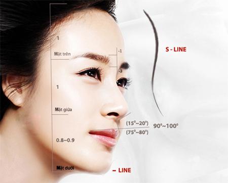 Nâng mũi Sline cấu trúc là gì