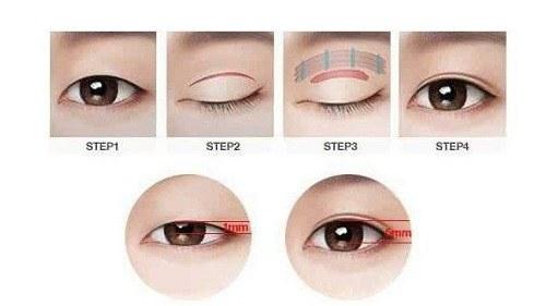 Phẫu thuật thẩm mỹ mắt kiêng ăn gì?