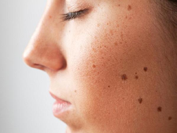 cách trị tàn nhang trên mặt
