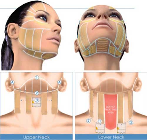 Công nghệ nâng cơ Ultherapy