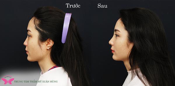 Nâng mũi cấu trúc sụn tai có an toàn không