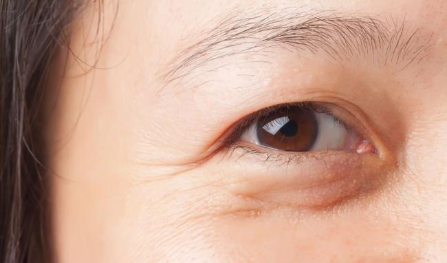 Thẩm mỹ mắt midface