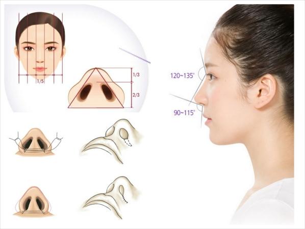 Thu gọn cánh mũi có để lại sẹo