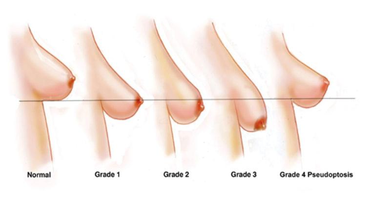Ngực chảy xệ sau khi sinh phải làm sao