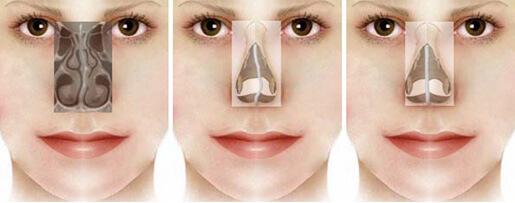 Sửa mũi bị lệch