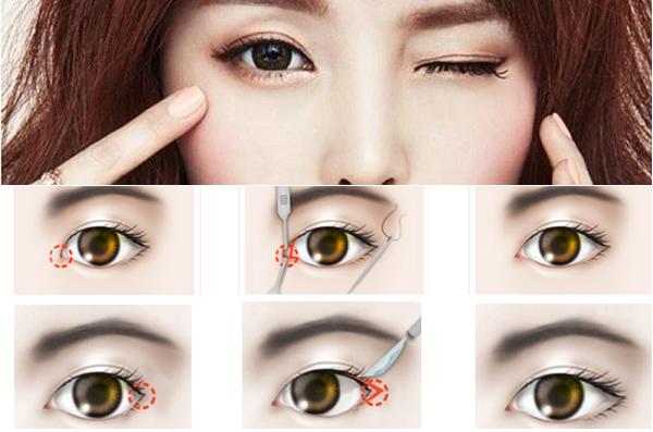 Phẫu thuật thẩm mỹ mở rộng mắt