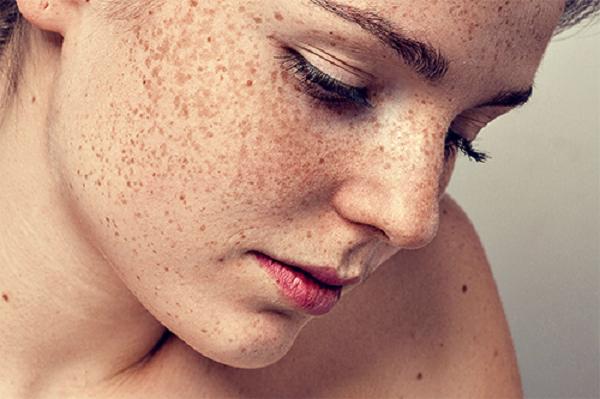 Vì sao bị nám da mặt