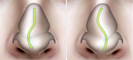 Chỉnh sửa mũi bị lệch