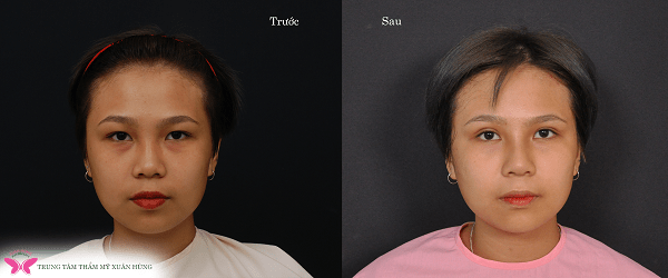 before-after-bung