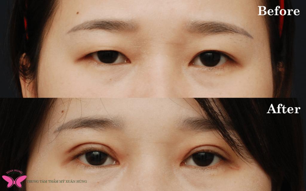 Bác sĩ thẩm mỹ mắt giỏi