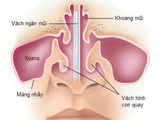Lệch vách ngăn mũi có nguy hiểm không